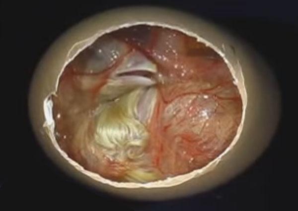 Зародыш в яйце на 21 день